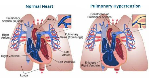Normal Heart vs a Heart with Pulmonary Hypertension